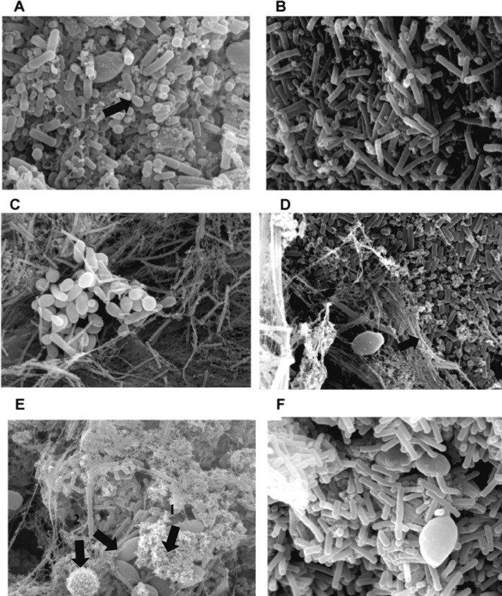 Kefir Knöllchen unter dem Mikroskop (aus de Oliveira Leite, 2013): Deutlich zu sehen ist die Ballaststoff-Matrix (Fäden), die Bakterien (kleine Mikroorganismen) und Hefen (große Knäuel), die in einer Symbiose zusammen leben.