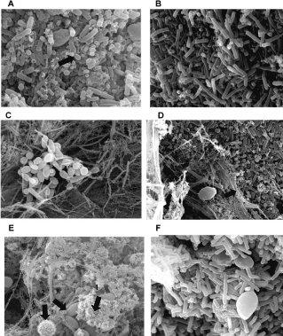Kefir Pilz unter dem Mikroskop